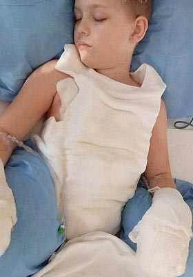 8-year-old-boy-badly-burned-after-trying-stunt-from-viral-video-2
